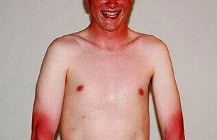 15 Ridiculous Sun Burn Photos